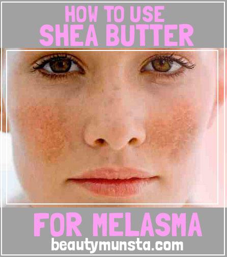 shea butter for melasma relief