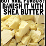 How To Use Shea Butter For Nail Fungus