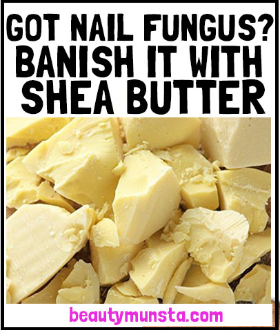 shea butter for nail fungus relief