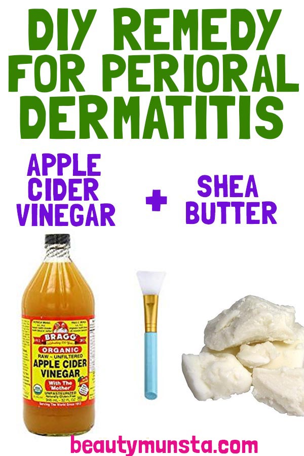 shea butter for perioral dermatitis