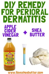 Shea Butter for Perioral Dermatitis with DIY Remedy