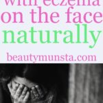 Top 10 Natural Remedies for Eczema on the Face