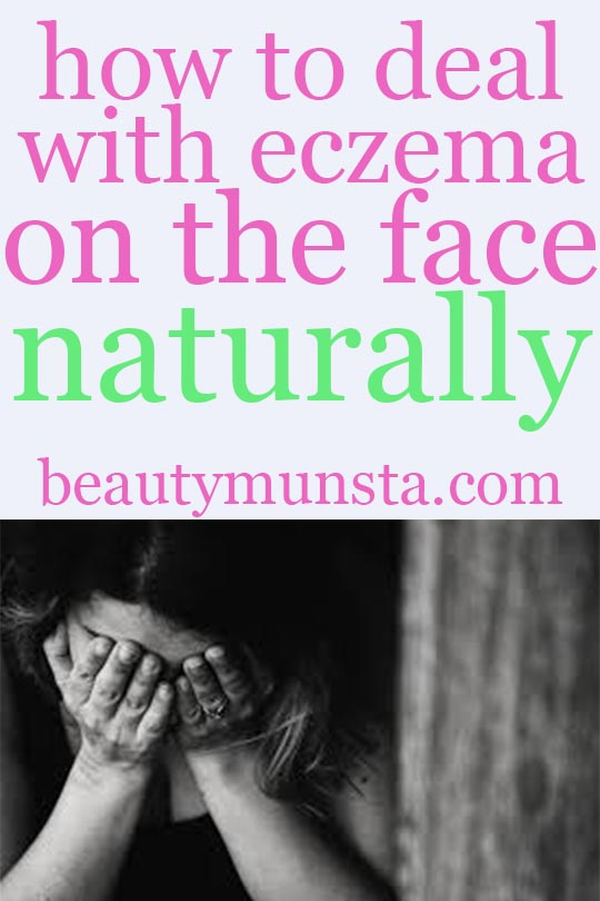 diy natural remedies for eczema on the face