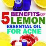 Lemon Essential Oil for Acne – Benefits and How to Use